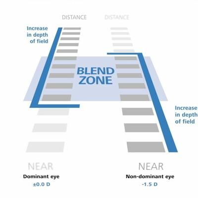 blend-zone-presbyond_augenarzt